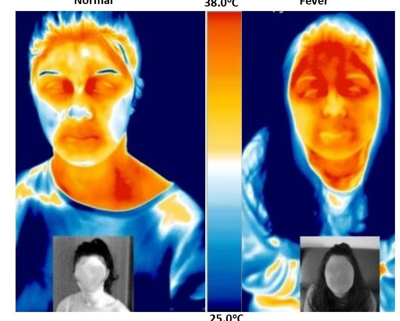 Medical Thermography as a Non-invasive and Contactless Screening Tool for Covid-19 Patients